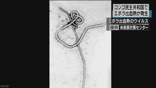 コンゴ民主共和国でエボラ出血熱 1人が亡くなる