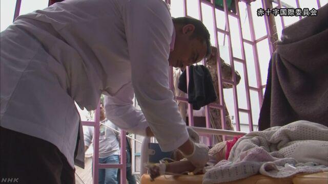 イエメンでコレラという病気が広がって471人亡くなる